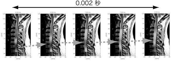 脊髄磁場計測による頚部脊髄機能イメージングの例