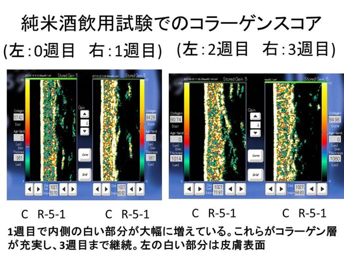 超音波真皮画像装置による「コラーゲンスコア」(真皮中のコラーゲンの密度)